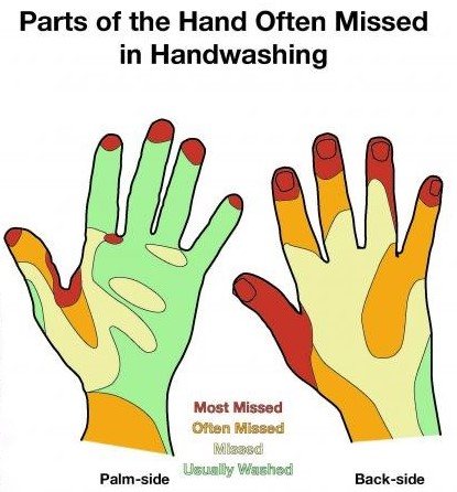 Parts of the Hand often Missed in Handwasking (2)